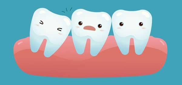 toothImpaction